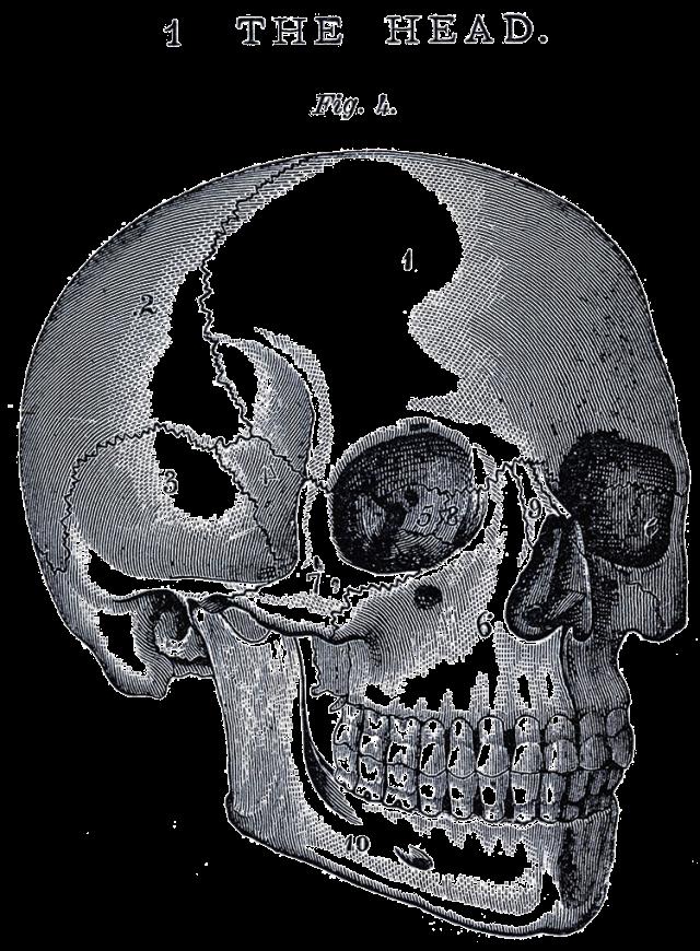 Small-Skull